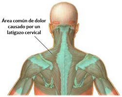 Área Común de Dolor Causado por un Esguince Cervical