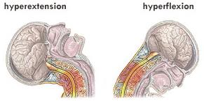 Hyperextensión e Hyperflexión